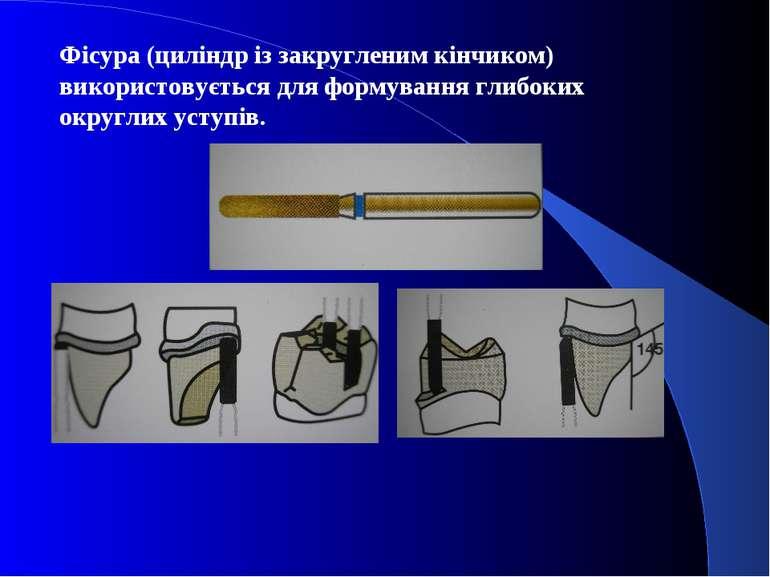 Фісура (циліндр із закругленим кінчиком) використовується для формування глиб...