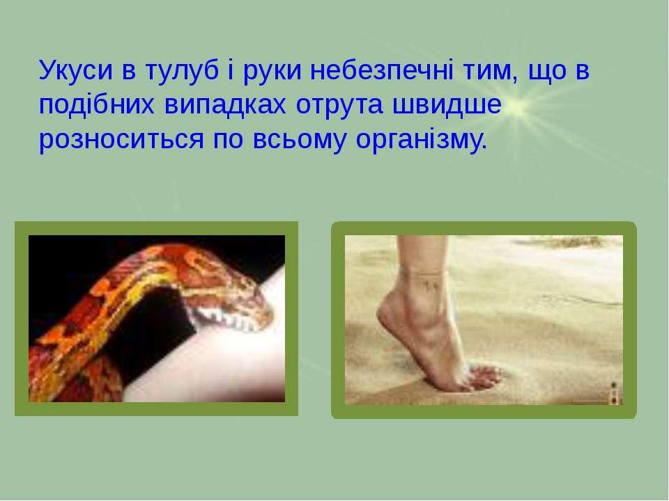 Укуси в тулуб і руки небезпечні тим, що в подібних випадках отрута швидше роз...