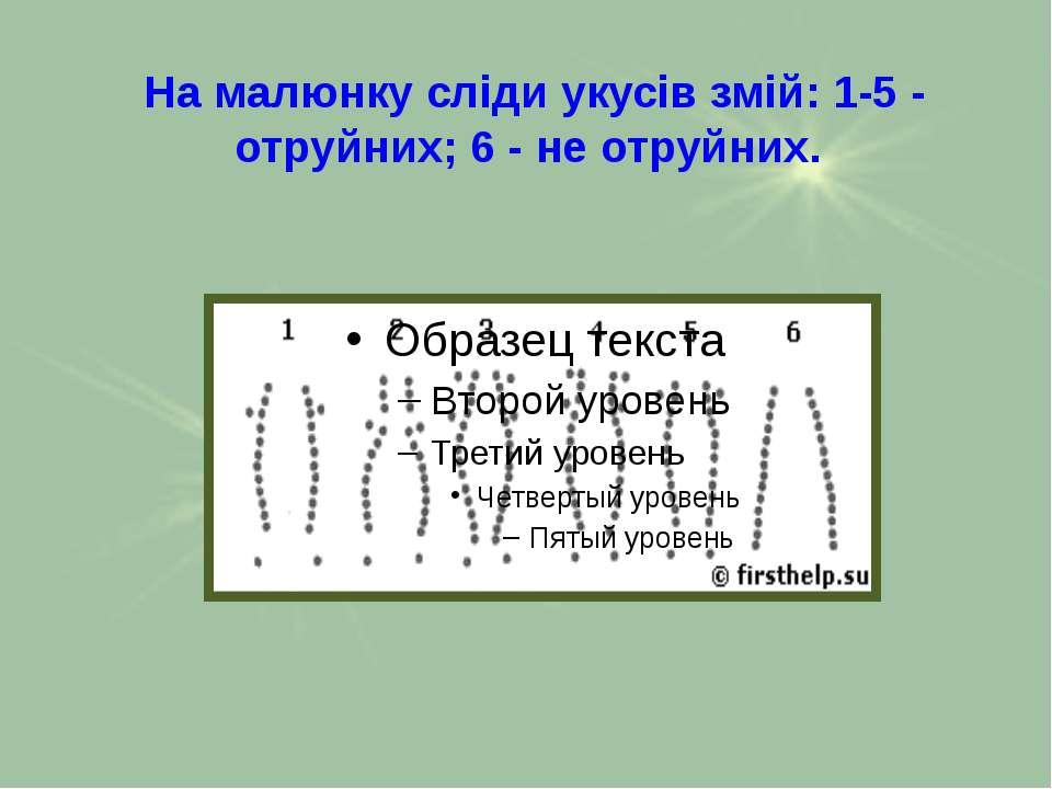 На малюнку сліди укусів змій: 1-5 - отруйних; 6 - не отруйних.