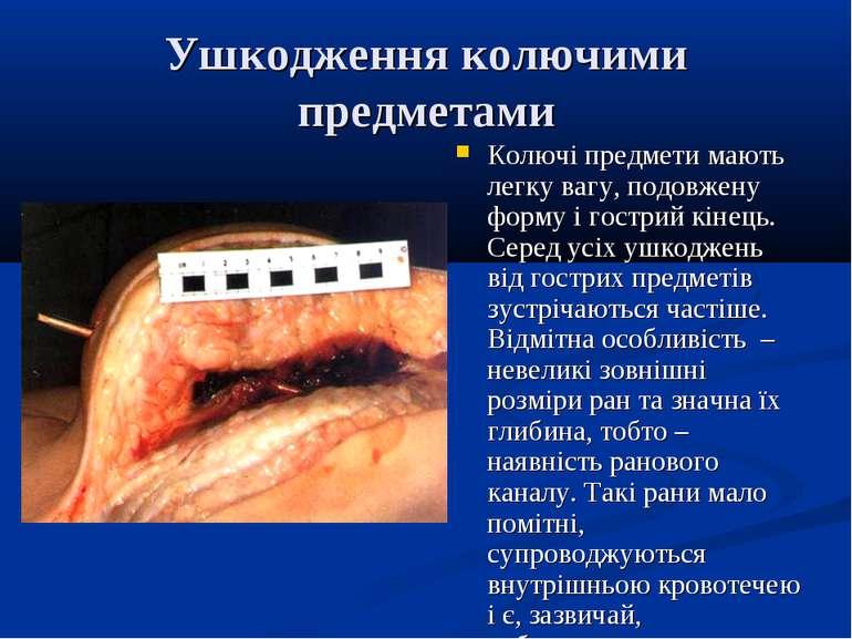 Ушкодження колючими предметами Колючі предмети мають легку вагу, подовжену фо...