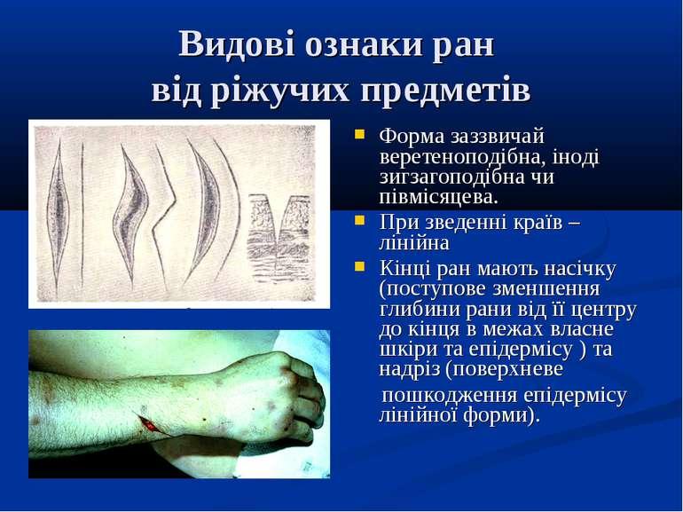 Видові ознаки ран від ріжучих предметів Форма заззвичай веретеноподібна, інод...