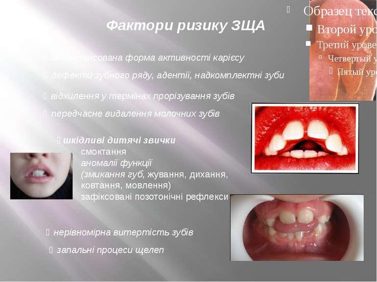 Фактори ризику ЗЩА декомпенсована форма активності карієсу дефекти зубного ря...