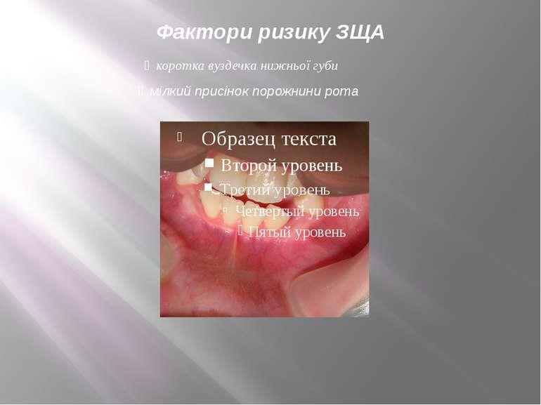 Фактори ризику ЗЩА мілкий присінок порожнини рота коротка вуздечка нижньої губи