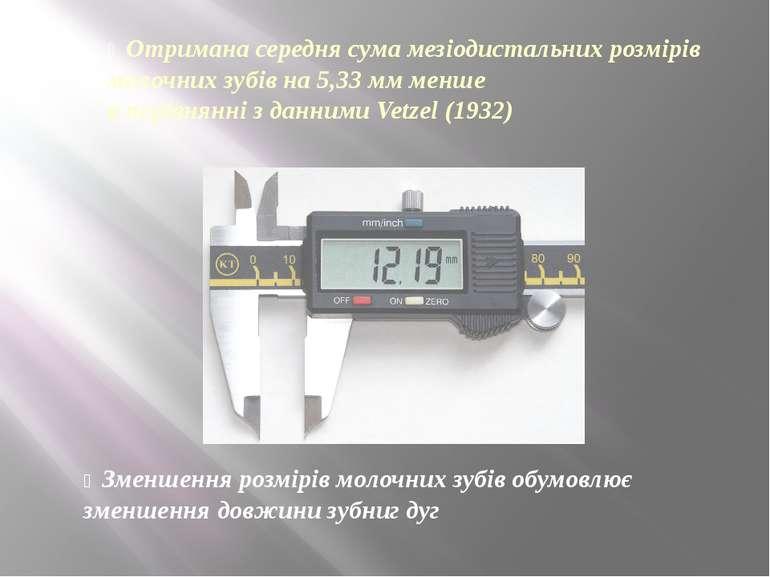 Отримана середня сума мезіодистальних розмірів молочних зубів на 5,33 мм менш...