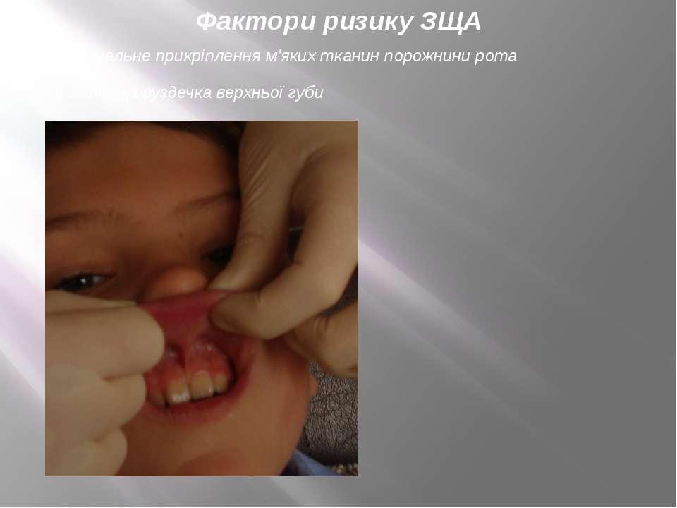 Фактори ризику ЗЩА аномальне прикріплення м'яких тканин порожнини рота коротк...