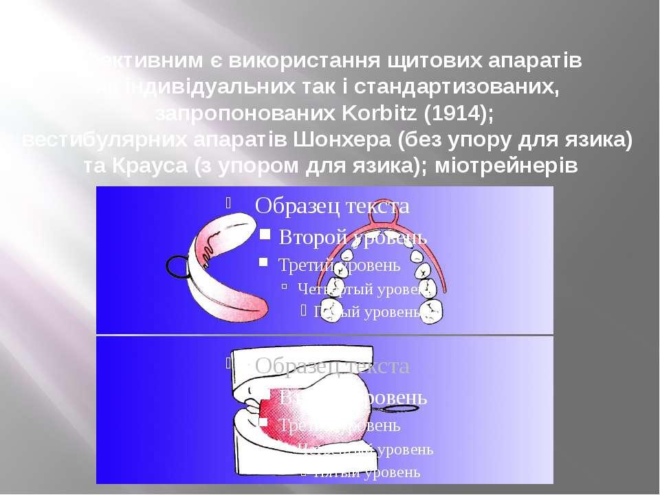 Ефективним є використання щитових апаратів як індивідуальних так і стандартиз...