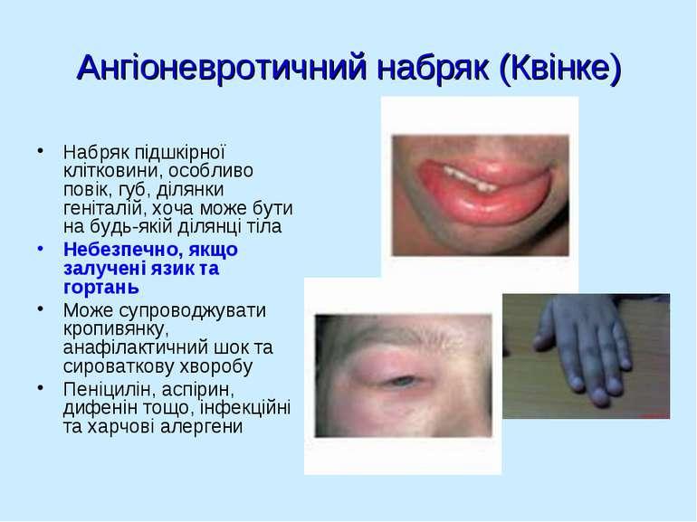 Ангіоневротичний набряк (Квінке) Набряк підшкірної клітковини, особливо повік...