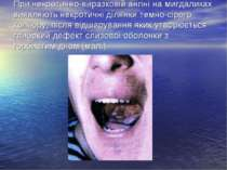 При некротично-виразковій ангіні на мигдаликах виявляють некротичні ділянки т...
