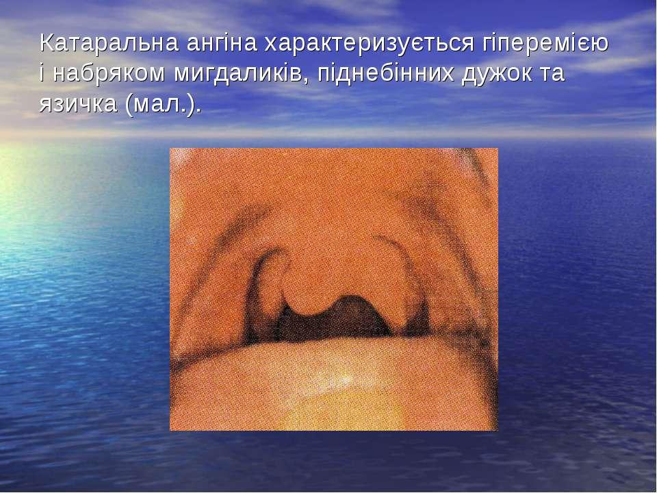 Катаральна ангіна характеризується гіперемією і набряком мигдаликів, піднебін...