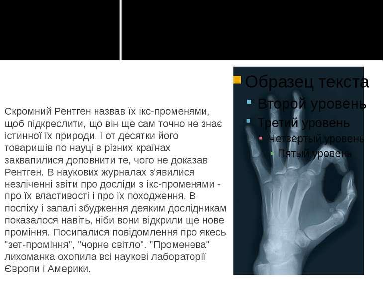 Скромний Рентген назвав їх ікс-променями, щоб підкреслити, що він ще сам точн...