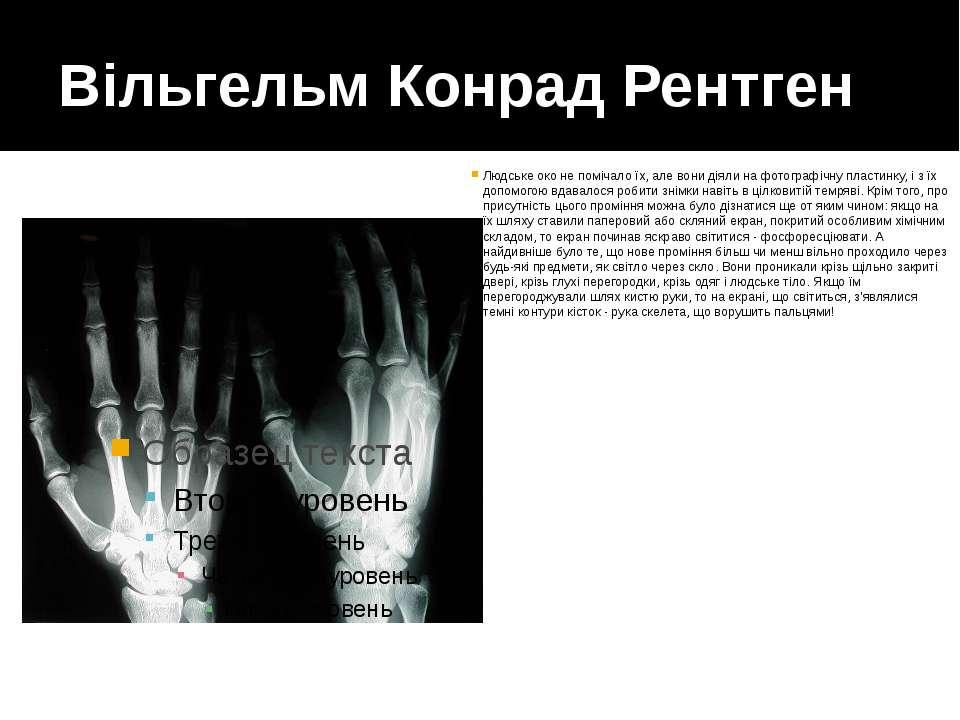 Вільгельм Конрад Рентген Людське око не помічало їх, але вони діяли на фотогр...