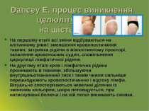 Dancey E. процес виникнення целюліту ділить на шість етапів. На першому етапі...