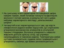 На третьому етапі характерне потовщення шкіри, набряк тканин, який починає ти...