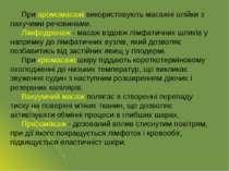 При аромомасажі використовують масажні олійки з пахучими речовинами. Лімфодре...