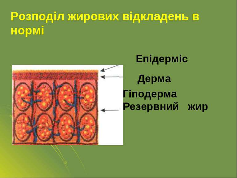 Гіподерма Резервний жир Розподіл жирових відкладень в нормі Епідерміс Дерма