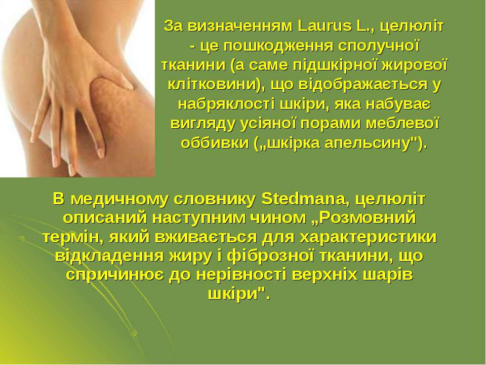 За визначенням Laurus L., целюліт - це пошкодження сполучної тканини (а саме ...