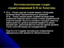 Реттгенологические стадии странгуляционной К Н по Хомутову. III в. - Резко сд...