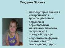 Синдром Пірсона макроцитарна анемія з нейтропенією і тромбоцитопенією. поруше...
