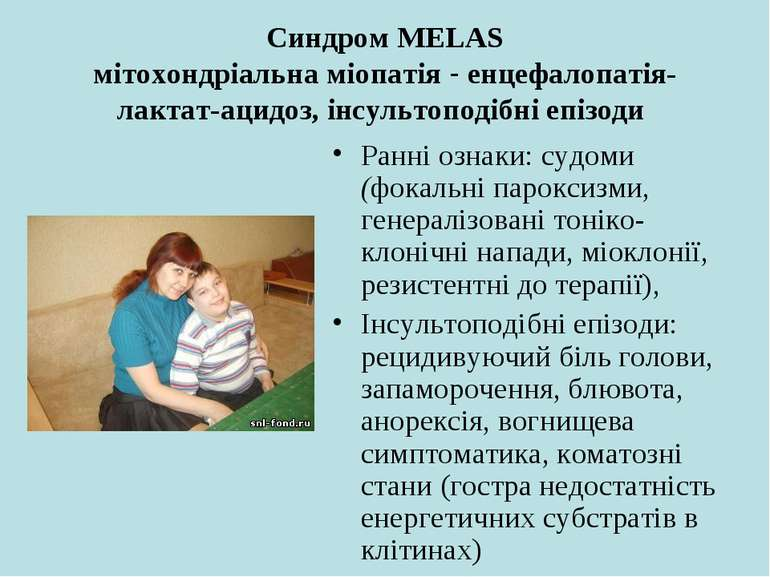 Синдром MELAS мітохондріальна міопатія - енцефалопатія-лактат-ацидоз, інсульт...