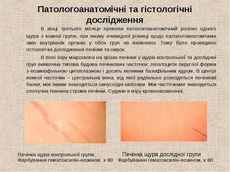 Патологоанатомічні та гістологічні дослідження В кінці третього місяця провел...