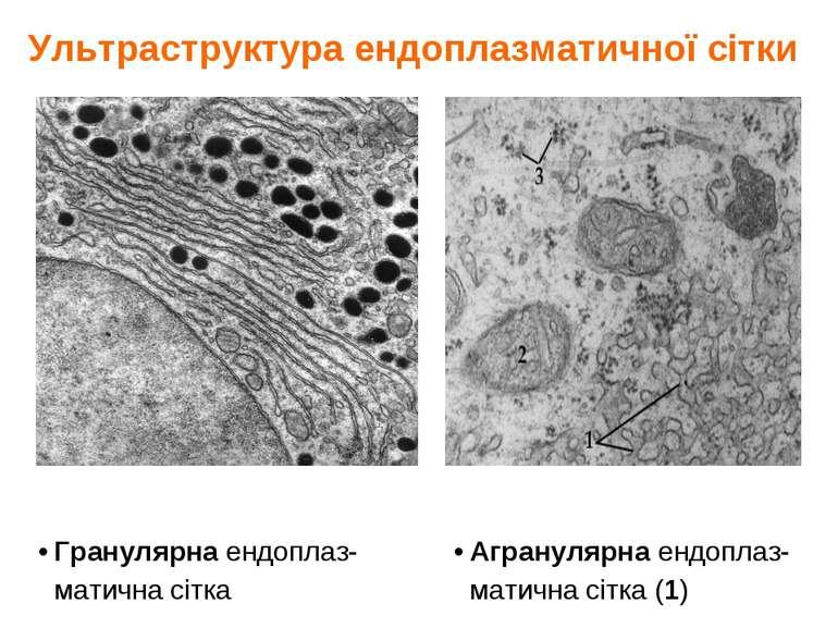 Ультраструктура ендоплазматичної сітки Гранулярна ендоплаз- матична сітка Агр...