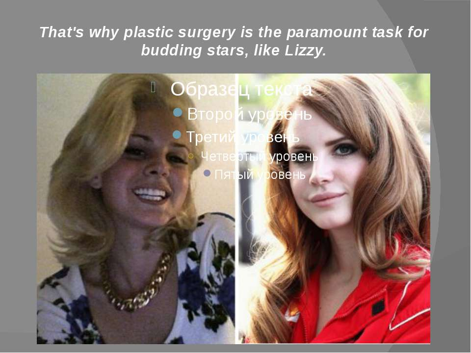 That's why plastic surgery is the paramount task for budding stars, like Lizzy.
