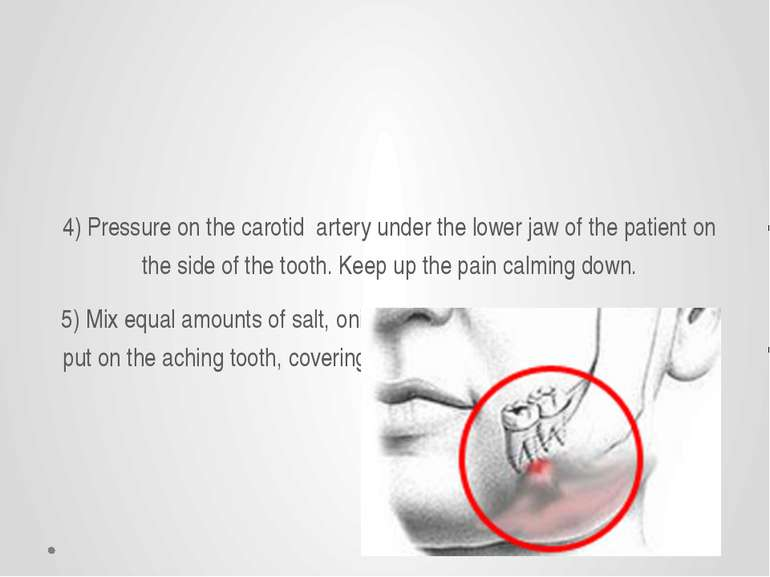 4) Pressure on the carotid artery under the lower jaw of the patient on the s...
