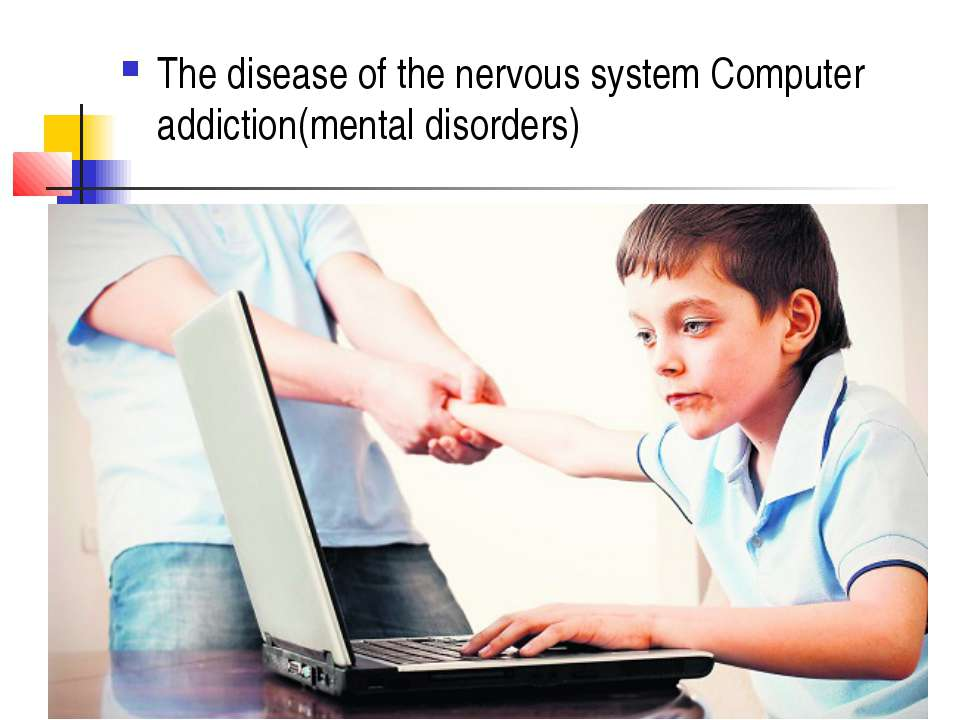The disease of the nervous system Computer addiction(mental disorders)