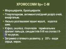ХРОМОСОМИ 9р+ С-М Мікроцефалія, брахіцефалія; Гіпертелоризм, антимонголоїдний...