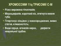 ХРОМОСОМИ 11q ТРИСОМії C-M Різко виражена гіпоплазія; Мікроцефалія, короткий ...