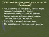 ХРОМОСОМИ 21q- (с-м делеції довгого плеча 21-ої хромосоми) Низька маса тіла п...