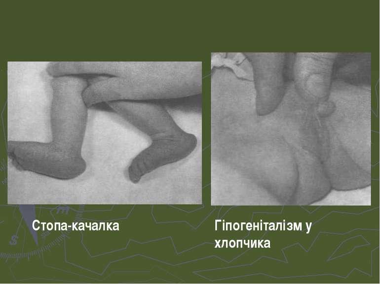 Стопа-качалка Гіпогеніталізм у хлопчика