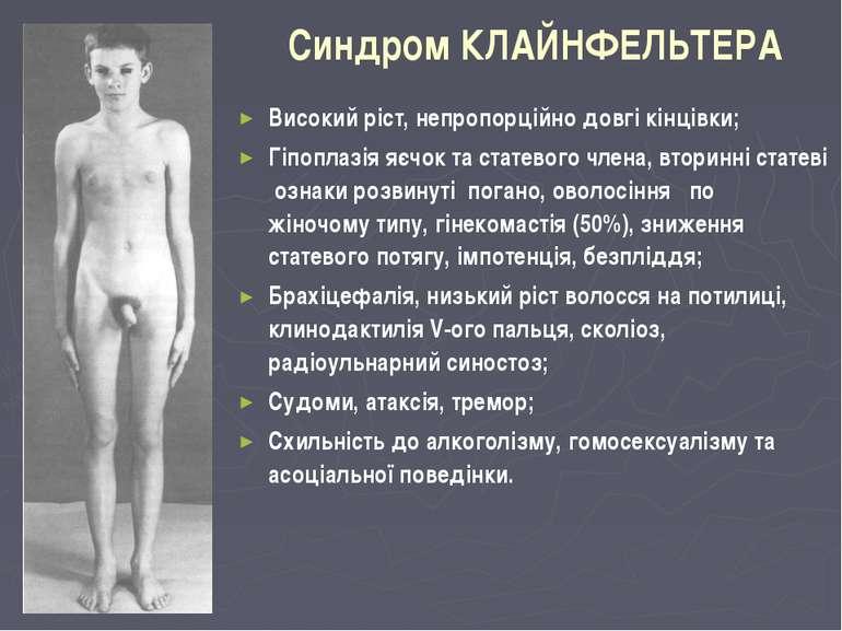 Синдром КЛАЙНФЕЛЬТЕРА Високий ріст, непропорційно довгі кінцівки; Гіпоплазія ...