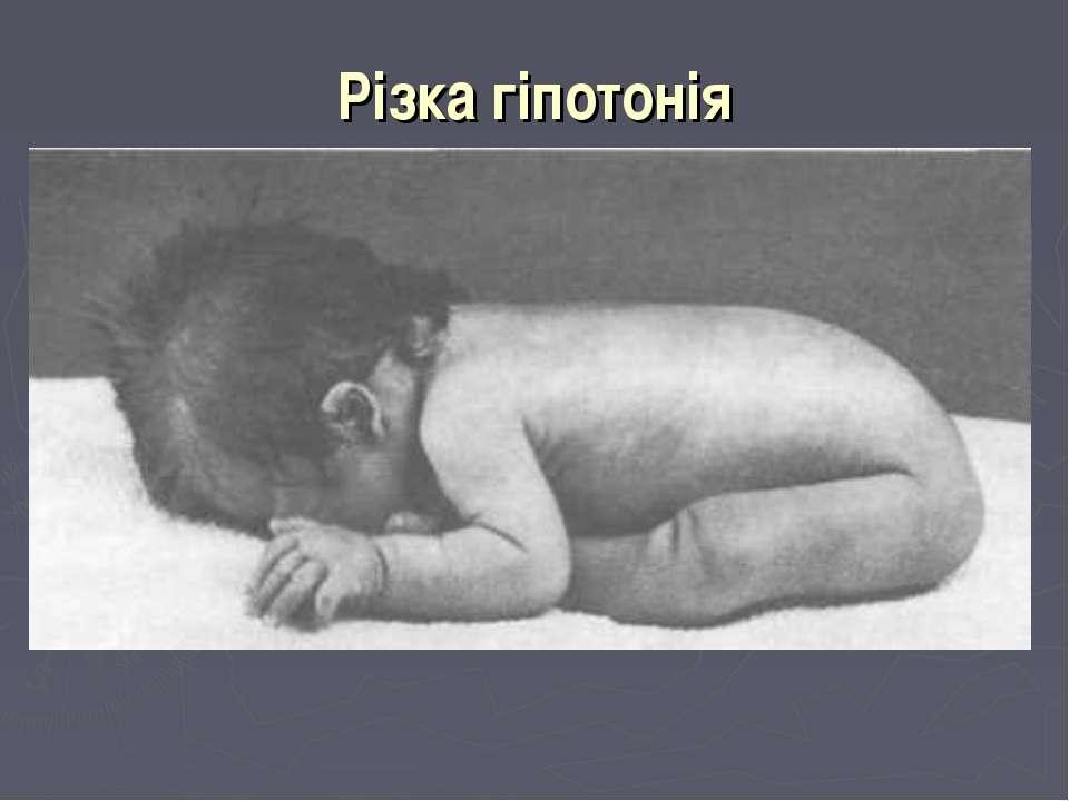 Різка гіпотонія