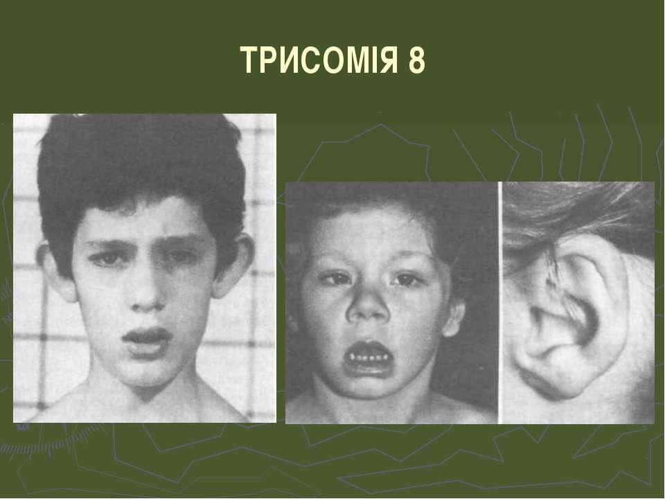 ТРИСОМІЯ 8