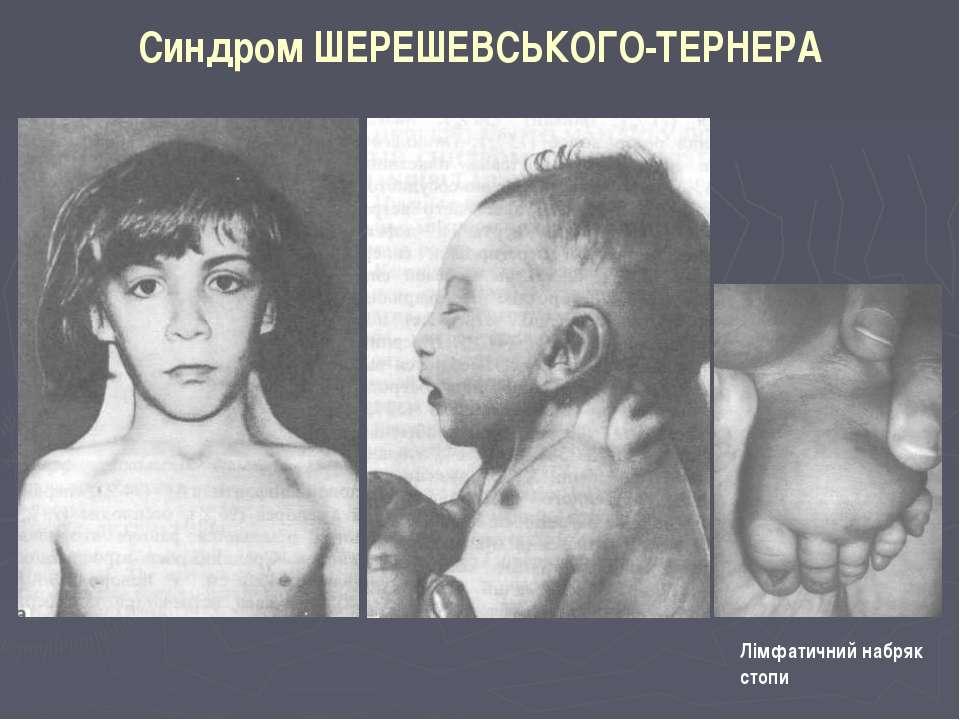 Синдром ШЕРЕШЕВСЬКОГО-ТЕРНЕРА Лімфатичний набряк стопи
