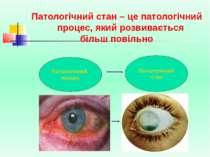 Патологічний стан – це патологічний процес, який розвивається більш повільно ...