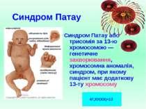 Синдром Патау Синдром Патау або трисомія за 13-ю хромосомою — генетичне захво...