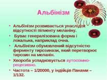 Альбінізм Альбінізм розвивається унаслідок відсутності пігменту меланіну. Був...