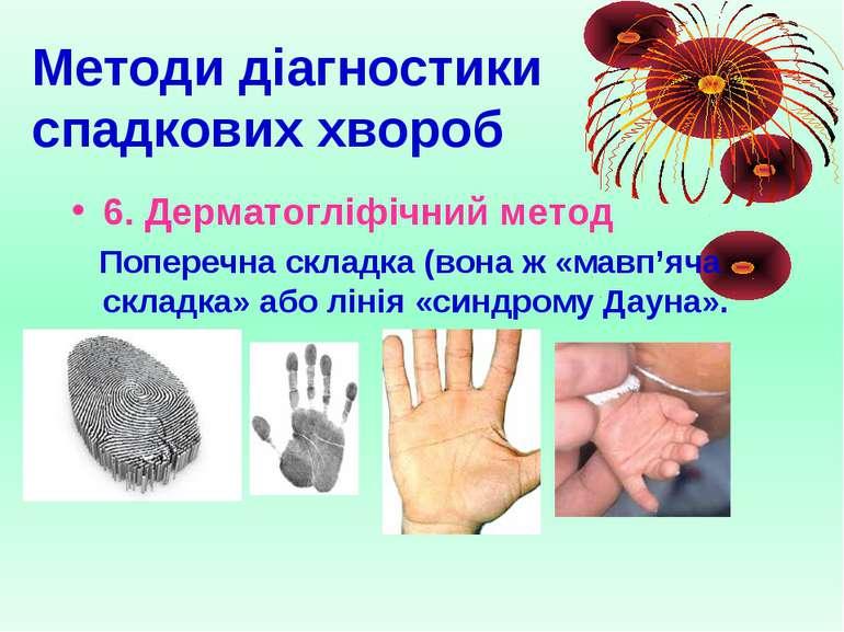 Методи діагностики спадкових хвороб 6. Дерматогліфічний метод Поперечна склад...