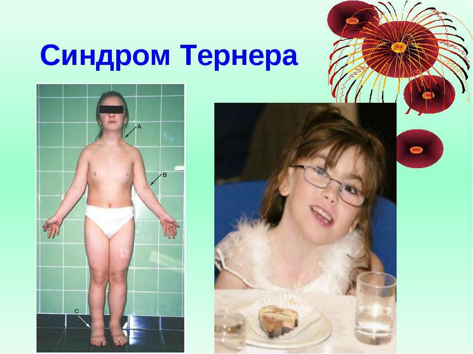 Синдром Тернера