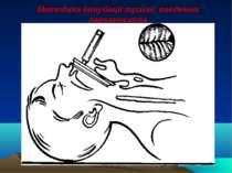 Методика інтубації трахеї: введення ларигноскопа