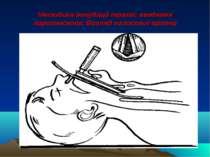 Методика інтубації трахеї: введення ларигноскопа. Вигляд голосової щілини