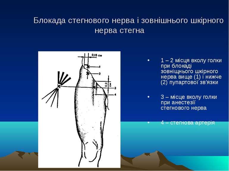 Блокада стегнового нерва і зовнішнього шкірного нерва стегна 1 – 2 місця вкол...