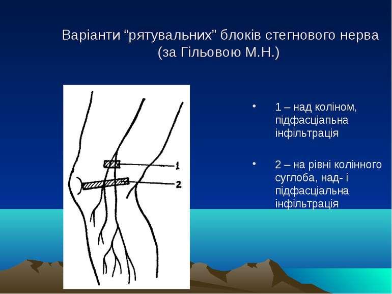 """Варіанти """"рятувальних"""" блоків стегнового нерва (за Гільовою М.Н.) 1 – над кол..."""