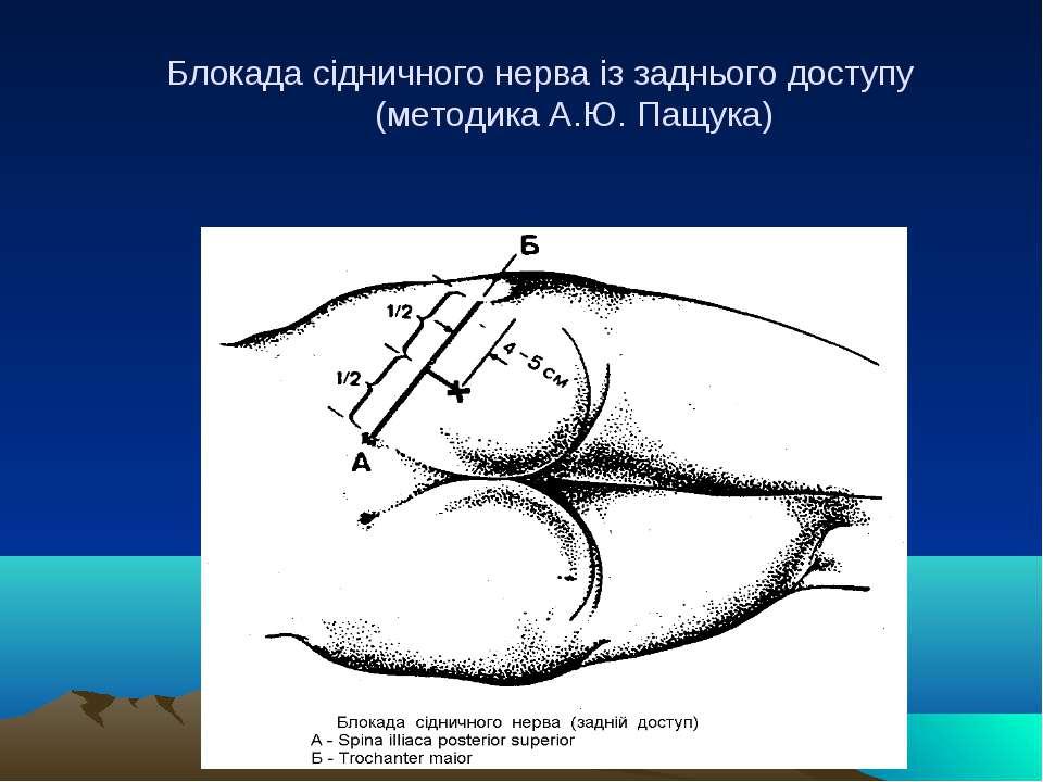 Блокада сідничного нерва із заднього доступу (методика А.Ю. Пащука)