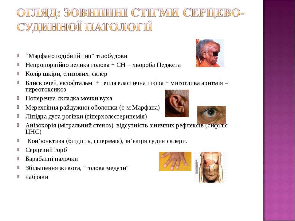 """""""Марфаноподібний тип"""" тілобудови Непропорційно велика голова + СН = хвороба П..."""