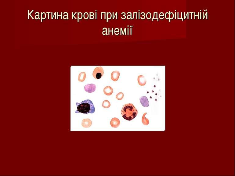 Картина крові при залізодефіцитній анемії
