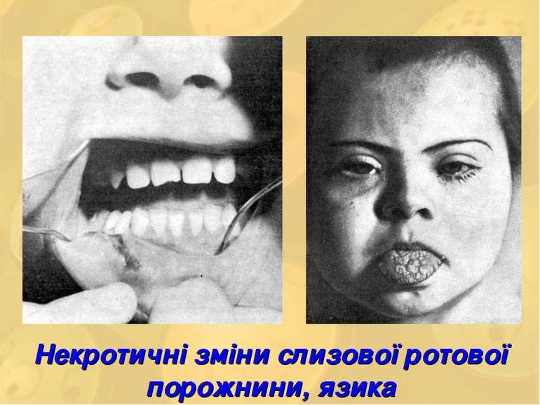 Некротичні зміни слизової ротової порожнини, язика