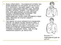 Вивих (dislocation) – пошкодження суглоба, при якому відбувається зміщення ча...